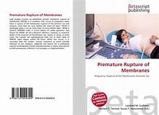 Premature Rupture Of Membranes Premature Rupture Of Membranes 978 613 3 02430 4
