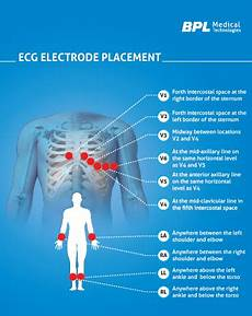 Ecg Placement Chart 12 Channel Ecg Amp Electrode Placement Bpl Medical