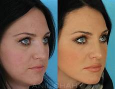 rhinoplasty pictures chicago il patient 459