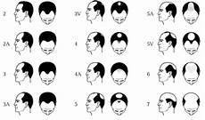 Diagnosing Men S Hair Loss Norwood Scale Chart