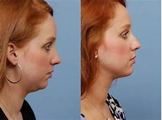 neck and chin lipo annapolis maryland the sandel duggal
