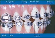 Brackets For Braces Parts Of Braces Bordentown Braces