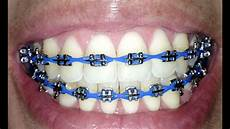 Light Blue Braces Power Chain Braces Update 26 Power Chains Youtube