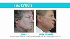 lines pores loss of firmness redefine regimen rodan