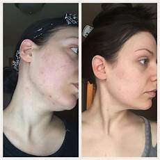 is curology the cure for your skin sweet inspovation
