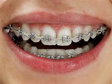 Brackets For Braces Metal Braces The Look Orthodontics