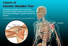 Arm Diagnosis Chart What Is Anterior Shoulder Causes Symptoms Treatment