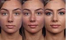 non surgical nose sculpting photos rejuvent spa