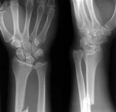 Galeazzi Fracture Galeazzi Fracture Orthopedics Medbullets Step 2 3
