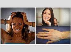 Natural Vitiligo Treatment System Book Teaches People How