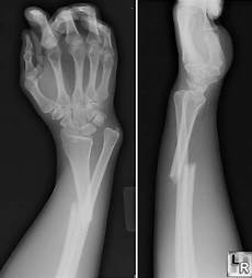 Galeazzi Fracture Learningradiology Galeazzi And Monteggia Fracture