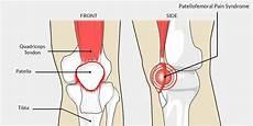 Patella Femoral Syndrome Patellofemoral Syndrome Pfps