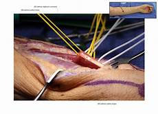 Fcr Tendon Median To Radial Nerve Tendon Transfers Pt To Ecrb Fcr