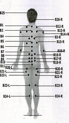 Hijama Cupping Points Chart Pinterest The World S Catalog Of Ideas