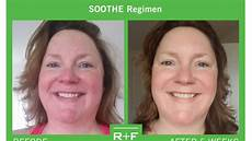 rodan and fields soothe before and afters