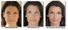 instant injectable lift cosmetic surgery news
