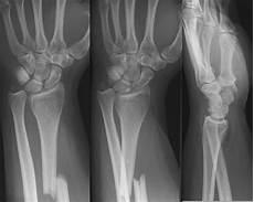 Galeazzi Fracture Galeazzi Fracture Litfl Medical Blog Medical Eponym