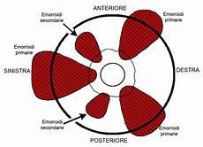 immagini emorroidi interne cosa sono le emorroidi cause sintomi e come eliminarle