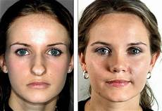 nose reshaping rhinoplasty or a nose is concerned