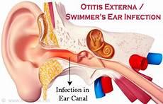 Otitis Externa Swimmer S Ear Infection Causes Symptoms