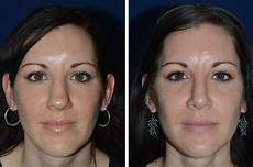 how does it take to heal after rhinoplasty