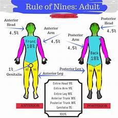 Burn Chart Body Rule Of Nines For Ems Emt Training Base