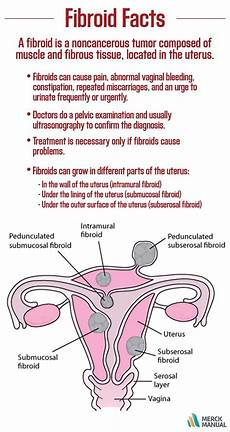 Uterine Fibroid Size Chart By Age 45 About 7 Out Of 10 Women Develop Fibroids Of The