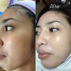 korean bb glow procedure semi permanent makeup services