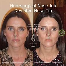 non surgical nose before after photos comparison in