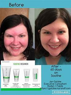 rodan fields soothe regimen used daily for 60 days
