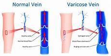 Varicose Vein Size Chart Varicose Veins Can Lead To Deadly Blood Clots If Left