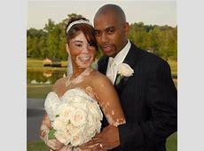 1000  images about Vitiligo on Pinterest