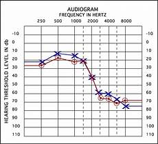 Hearing Loss Frequency Chart Understanding Your Audiogram