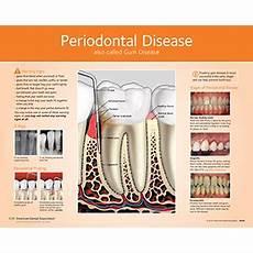 Gum Chart Periodontal Gum Disease Chart For Patient Education