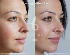 non surgical nose before and after pictures botonics