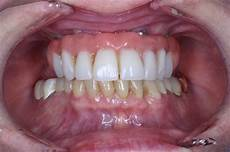 All On 4 All On Four Bridge Dental Implant Patients