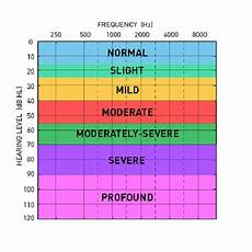Hearing Loss Frequency Chart What Is An Audiogram My Baby S Hearing