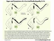 Arm Diagnosis Chart Is Your Neck Causing Your Arm Or Shoulder Warman