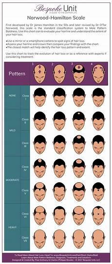 Men S Best Guide To Going Bald Shaving Head Amp Hair Loss