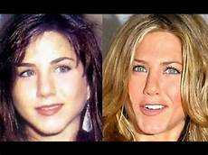 actors plastic surgery before and after