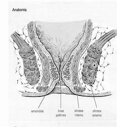 immagini emorroidi interne emorroidi interne da atlante chirurgia calne r e