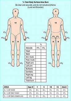 Burn Chart Body Rule Of 9 S Burn Chart Pediatric Nursing Rule Of Nines