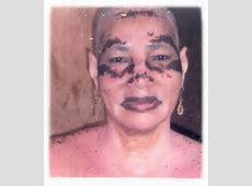 80 best Vitiligo images on Pinterest