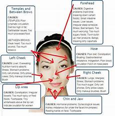 Chinese Acne Face Chart Pin By Clara On Skincare Methods In 2019 Face