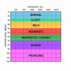 Hearing Loss Frequency Chart How Is Classification Of Hearing Loss Is Done On Basis Of