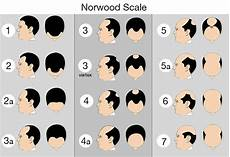 Norwood Scale Hair Loss Chart For Men With Pattern
