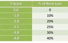 Bone Mass Chart Kg Bone Density Chart Understand Your Bone Density Scores