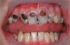 Dental Caries Caries Diagnosis Part 1 Intelligent Dental
