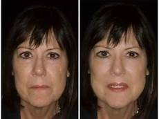 liquid facelift before and after pics with cosmetic