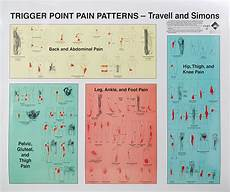Travell Trigger Point Chart Galleon Trigger Points Of Wall Charts Set Of 2